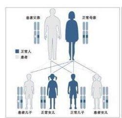 常染色体病  免费编辑   添加义项名