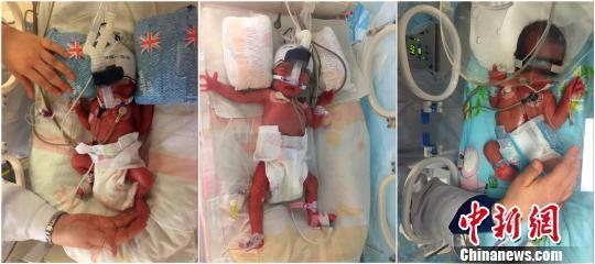 女子生下儿子6天后 又生双胞胎女儿 - 997276078 - 真见利不忘义的博客