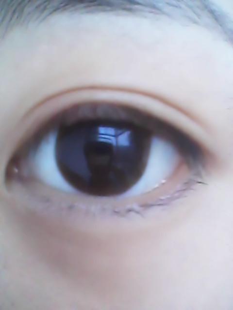 看电脑看久了眼睛痛怎么办?