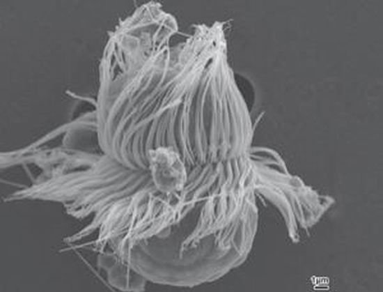 最新发现一种奇特海洋微生物,兼具动物和植物特征