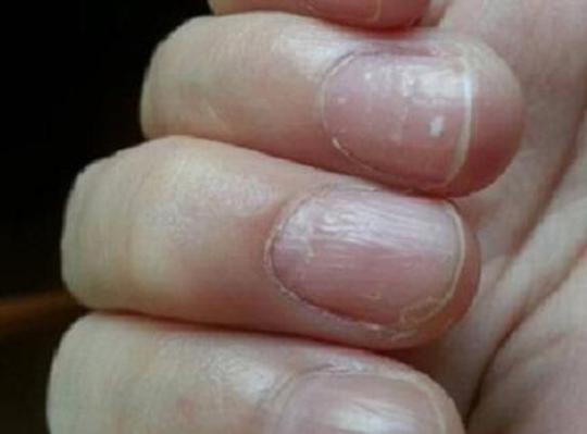 指甲反映健康,这5类指甲的人注意了,自我检测健康值 -  - 真光 的博客