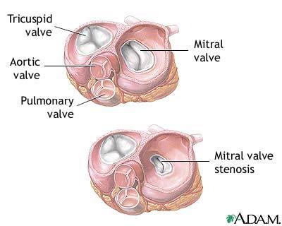 心脏的瓣膜结构图