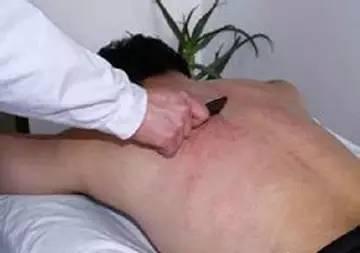 肝经的刮痧方法图解