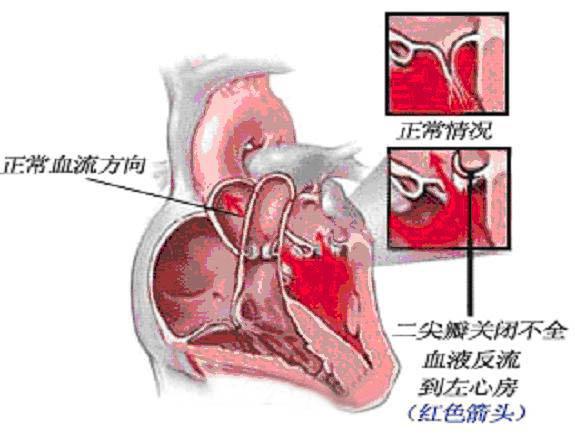 心脏瓣膜问题:二尖瓣轻度脱垂并轻度关闭不全,轻度二尖瓣返流;左心室