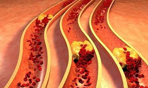 血管每天清,人变漂亮,身体也硬朗了 - 一览众山 - haoshi8899ok 的博客一览众山