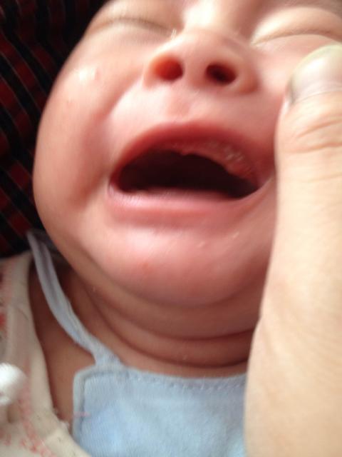 宝宝牙龈上还有白点怎么回事