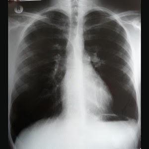 TB Proof: TB Risk Report Form