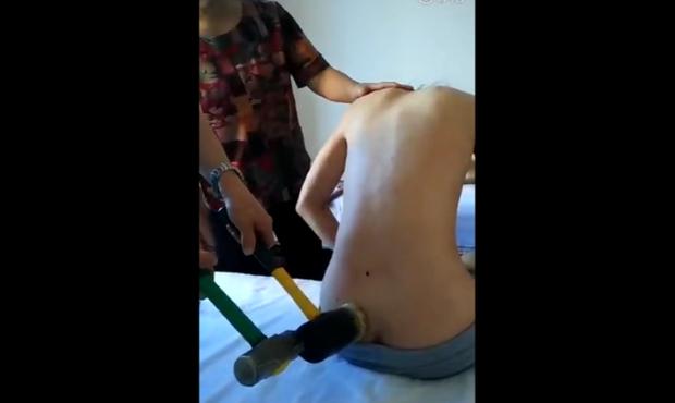 老中医敲锤子给女子治疗腰椎-大福友