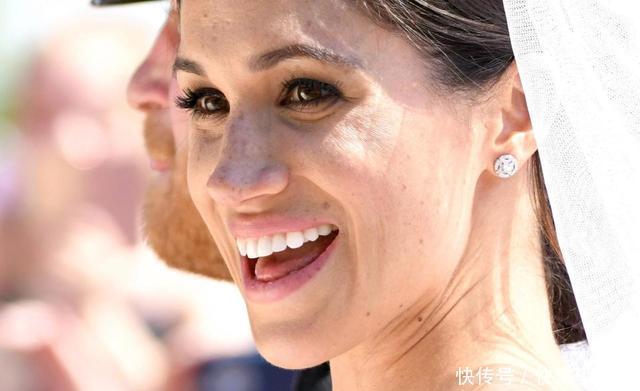 很多欧美明星或公众人物脸上都会长有很多雀斑,但是她们并不认为这些